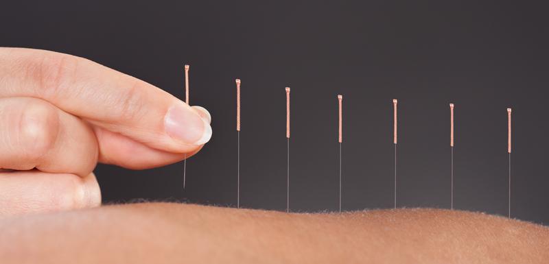 aiguilles d'acupuncture sur le bras