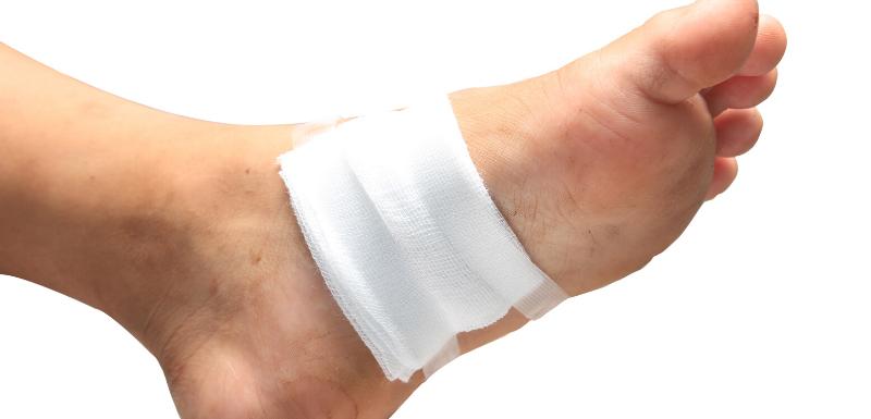 Ulcères du pied diabétique : y-a-t-il des facteurs de risque d'amputation ?