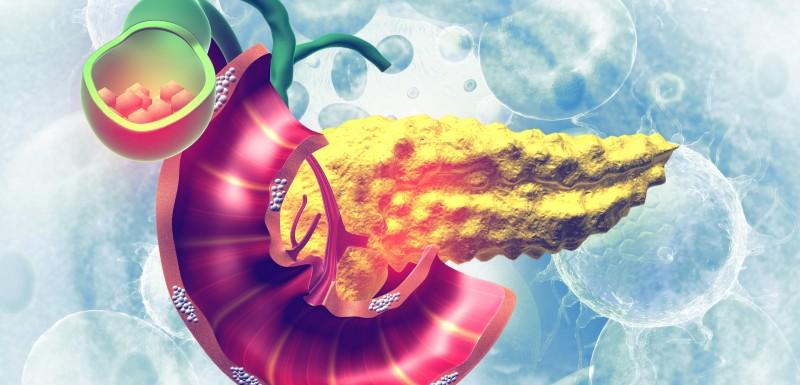 Diabète et risque de pancréatite, un lien confirmé
