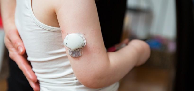 Enfant qui a un capteur de glycémiesur le bras